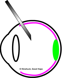diagram of lucentis intravitreal injection