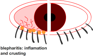 blepahritis cuases a irritable, dry or watery eye