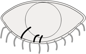 trichiasis: ingrowing lashes