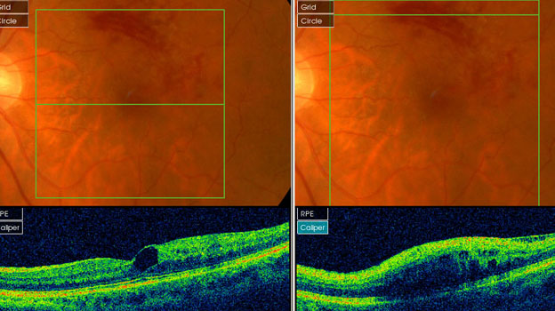 retinal leakage after a retinal vein occlusion