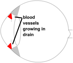 diagram of rubeotic vessels