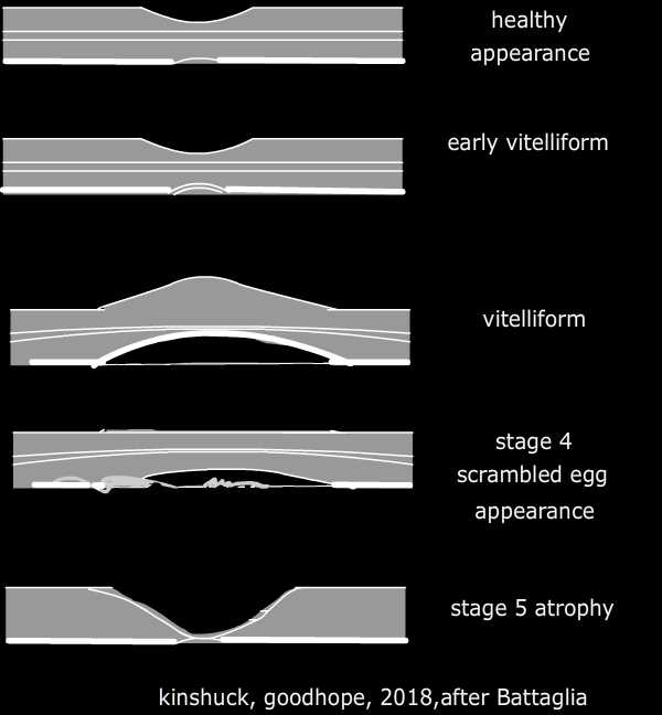 Adult onset vitelliform macular dystrophy (VMD) stages