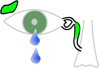 a blocked tear sac causes a watery eye
